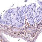 Colon adenocarcinoma stained with PTEN (SP218) antibody